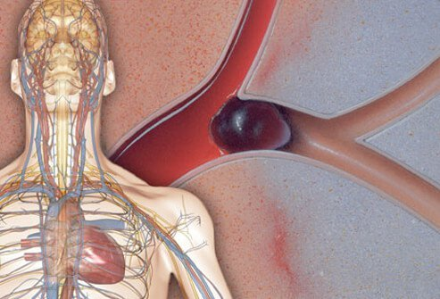 AFib of the heart may increase the risk of stroke.