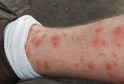 Small red dots on ankles and feet? | Yahoo Answers