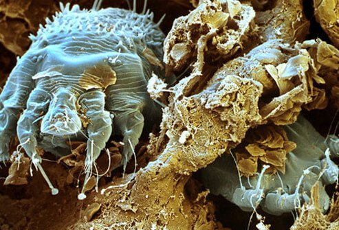 Scabies are mites that burrow into the skin, causing intense itching.