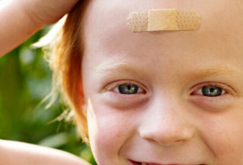 A child with a bandage on his head.