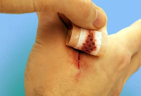A person peels a bandage from a cut on his hand.