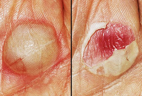 Photos of an unbroken and broken or popped blisters.