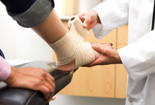 A doctor wraps a foot sprain with a bandage.