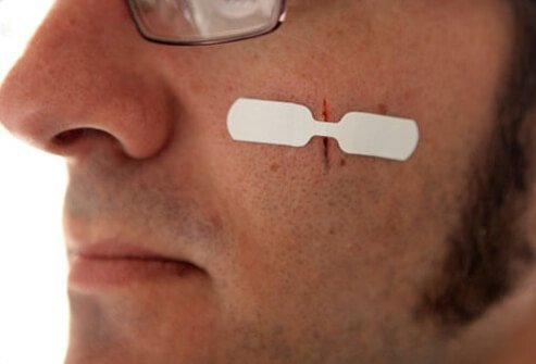 A man with a butterfly bandage on his cheek to close an open cut.