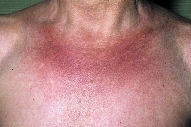 Your doctor might prescribe ultraviolet light to ease symptoms of morphea.