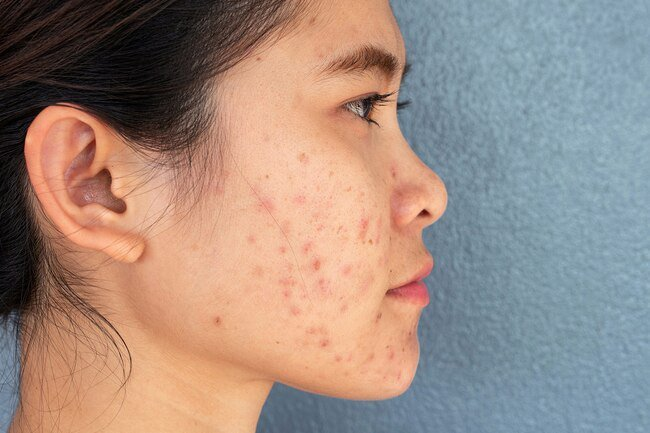 Blue light, red light, and intense pulsed light can help treat acne and pimples.