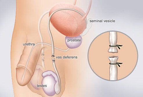 A diagram of a vasectomy.