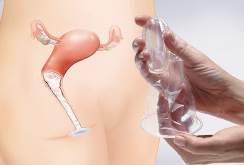 A female condom and diagram on how it is used.