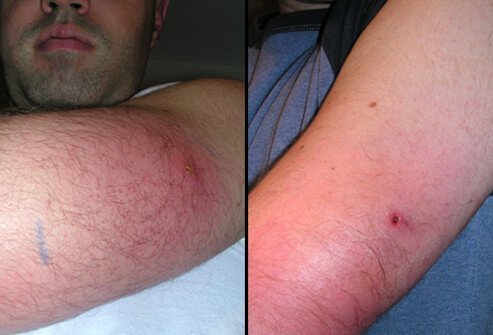 Example of a back widow spider bite several hours (left) to several days later (right).