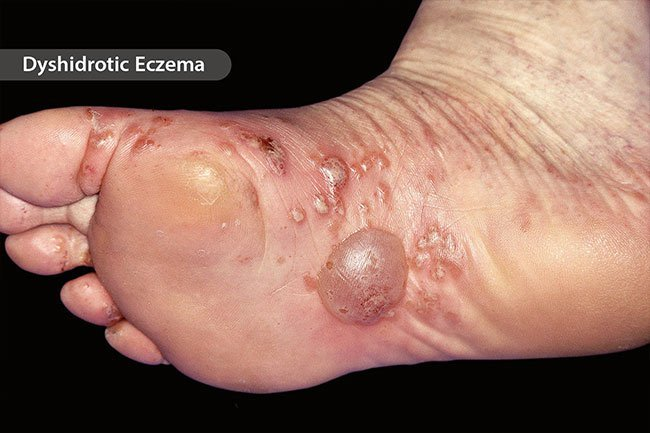 Sometimes, very itchy blisters appear on your palms or the soles of your feet as a result of atopic dermatitis or eczema.