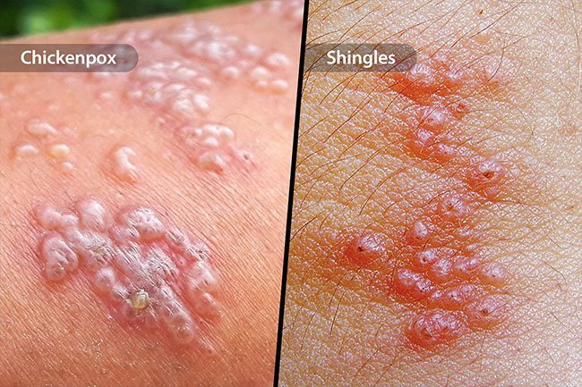 Herpes viruses like chickenpox and shingles may give you painful rashes with blisters.