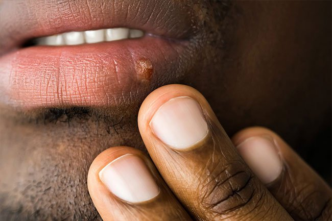 Blisters on the lips, mouth, or genitals may be due to the herpes simplex virus.