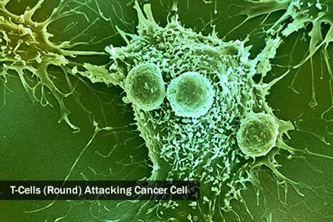 Genetically-modified T cells attack cancer cells in chimeric antigen receptor (CAR) T-cell therapy.