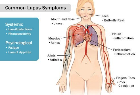 Lupus can cause your joints and tendons to swell, causing pain.