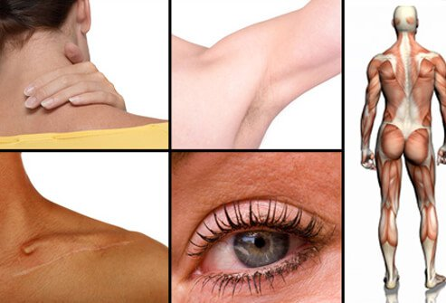 The most common places for boils to appear are on your neck, armpits, shoulders, and buttocks.