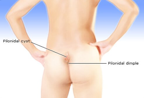 A pilonidal cyst is a unique kind of abscess that occurs in or above the crease of the buttocks.