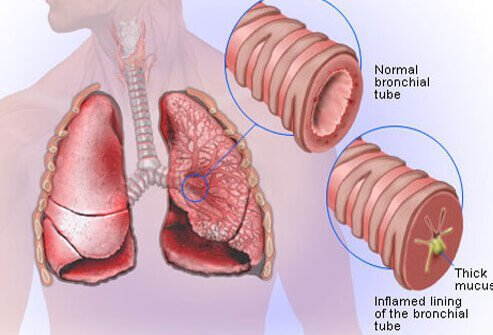 Illustration picture of lung diseases and problems bronchitis picture of acute bronchitis ccuart Choice Image