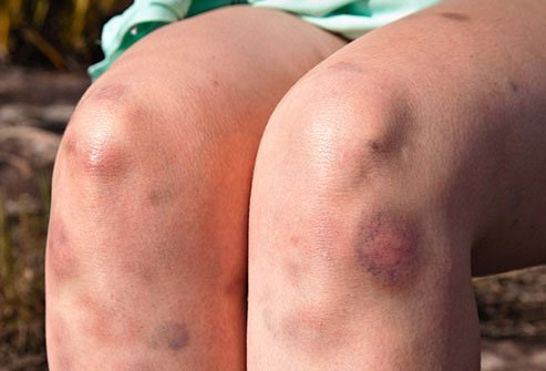 There are many reasons why some people bruise more easily than others.