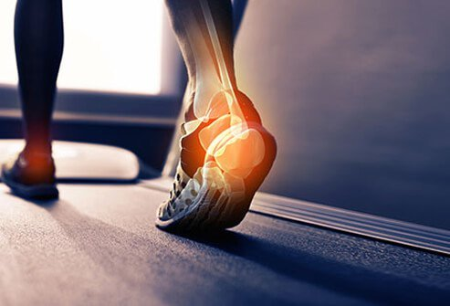 A runner on the treadmill highlighting heel bursitis inflammation.
