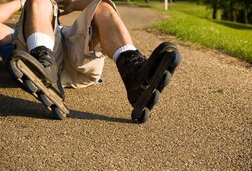 Ischial bursitis can be caused by a fall affecting the bursa that lays between the buttocks and the sits bones as shown here by a fallen rollerblader.
