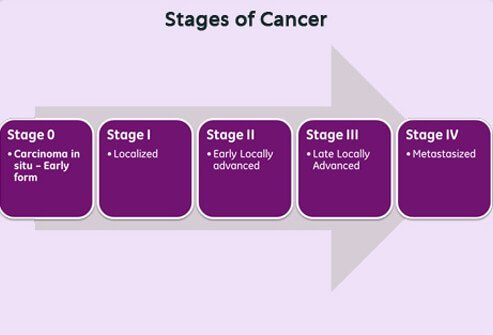 Chart illustrating the 5 stages of cancer.