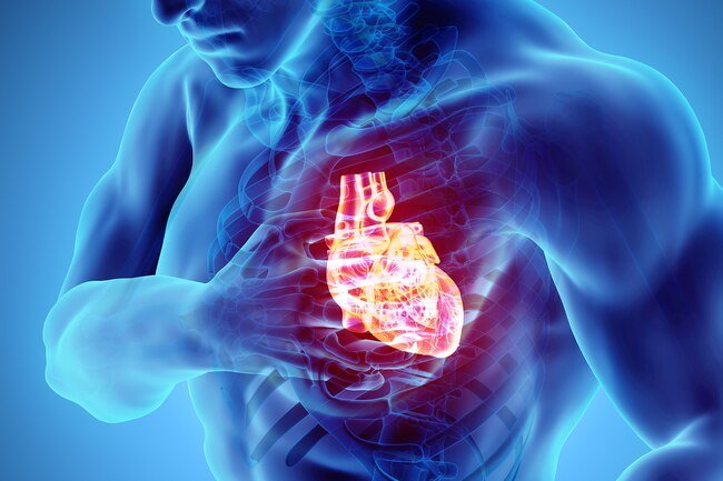 Cardiac arrest, sometimes called sudden cardiac arrest, means that your heart suddenly stops beating.