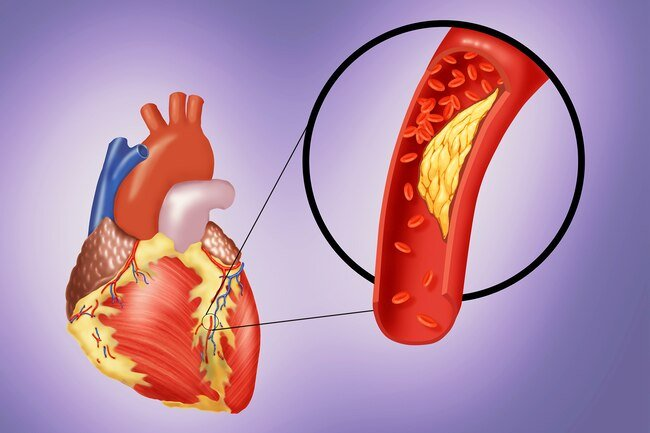 Many people who have cardiac arrest also have coronary artery disease.