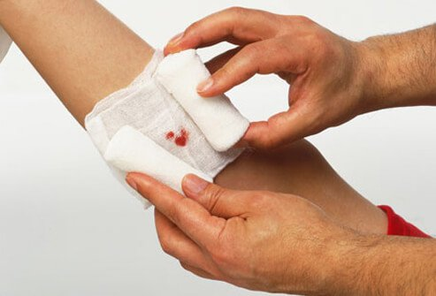 A person applies a gauze wrap to a wound.