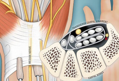 The carpal tunnel is a narrow passageway on the palm side of your wrist made up of bones and ligaments.