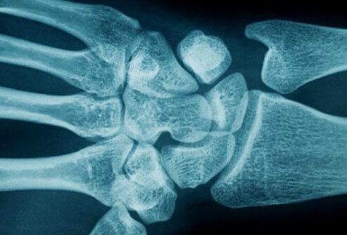 There usually isn't one definitive cause of carpal tunnel syndrome.