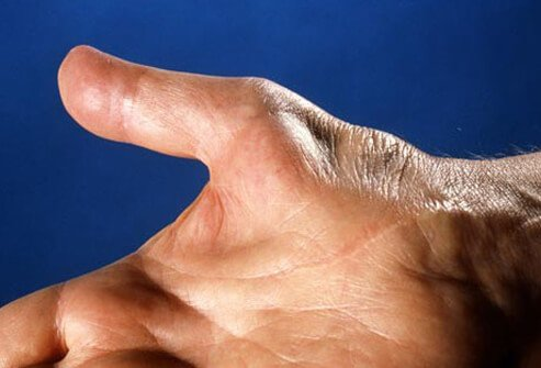 At first, symptoms of carpal tunnel syndrome come and go, but as the condition worsens, symptoms may become constant.