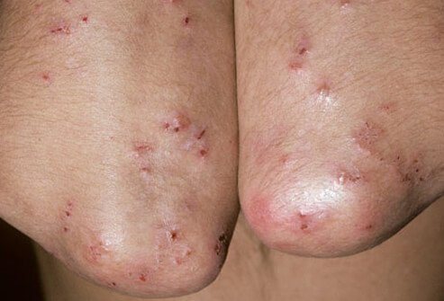 For some people, celiac disease causes an itchy, blistering rash known as dermatitis herpetiformis.