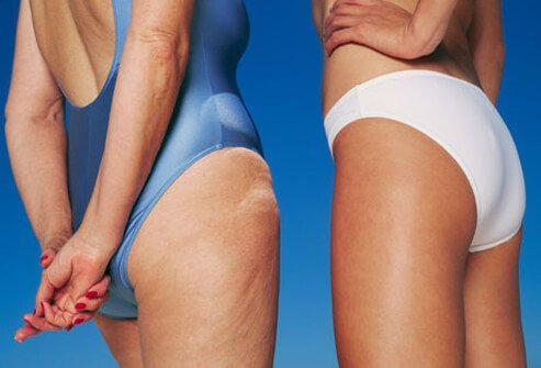 Cellulite is the term given to the dimpled skin on the abdomen, buttocks, and thighs of most healthy adult women.