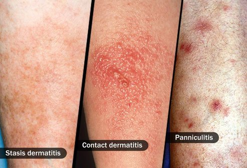 Cellulitis symptoms mimic those of other conditions so get an examination by an experienced doctor.