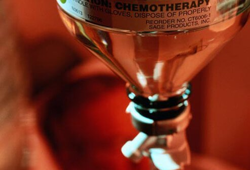 Photo of chemotherapy treatment for cervical cancer.