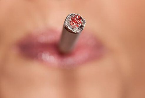 Photo of woman smoking, a risk factor of cervical cancer.