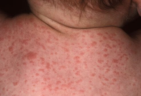 A rosy-pink rash caused by roseola.
