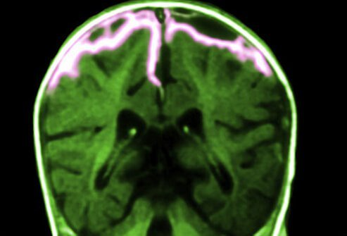 Meningitis is an inflammation of the tissue surrounding the brain and spinal cord (meninges).