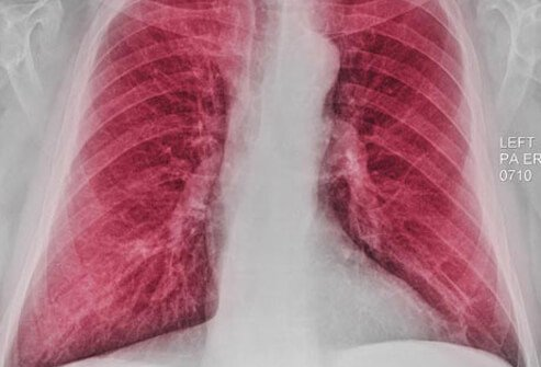 Chest x-ray showing COPD.