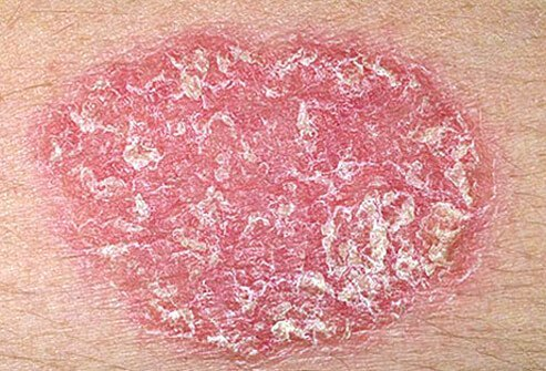 Psoriasis is a rash of thick plaques covered with silvery scales.
