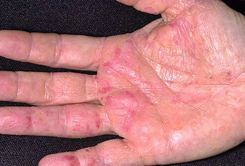 Stress, irritants (like soaps), allergens, and climate can trigger flare-ups of eczema.