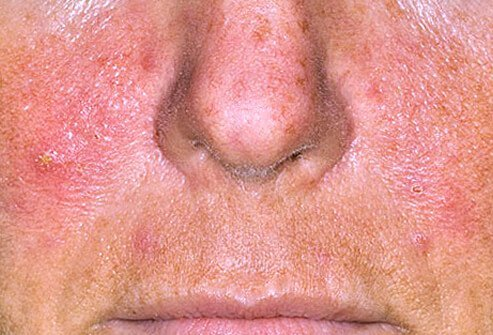 Rosacea causes redness on the nose, chin, cheeks, forehead, even in the eyes.
