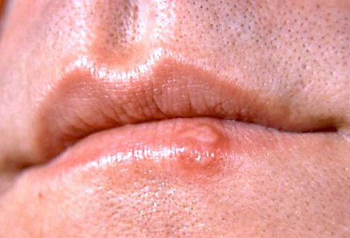 Cold sores last 7-10 days; they're contagious until completely crusted over.