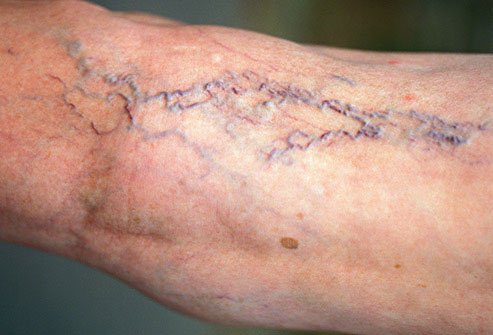 Varicose veins can cause leg pain and other symptoms.