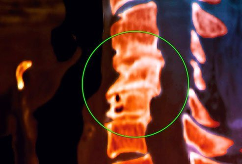 Your vertebrae have slippery tissue on each end that helps your back flex without friction.