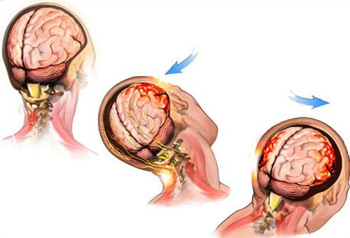 A concussion is defined as a blow to the head that results in disturbance of cerebral function.