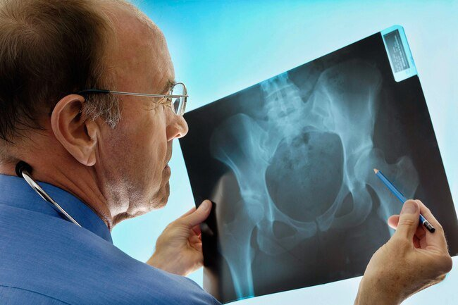 Women are more likely to get osteoporosis and the condition is often overlooked in men.