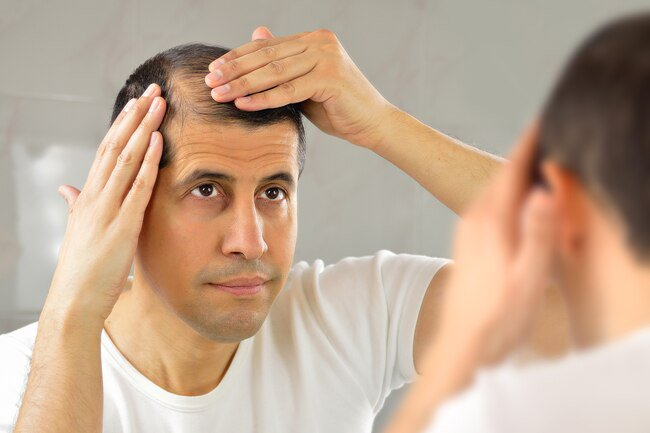 Men are more likely to experience hair loss than women.