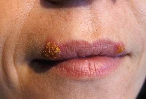A woman with two cold sores on her top lip