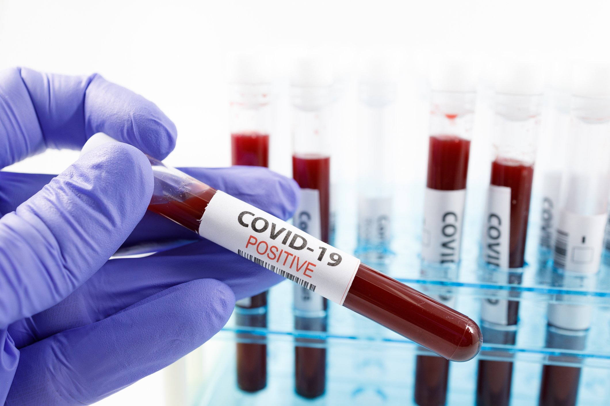 The only antibody currently available for treating COVID-19 is found in the blood plasma of disease survivors.